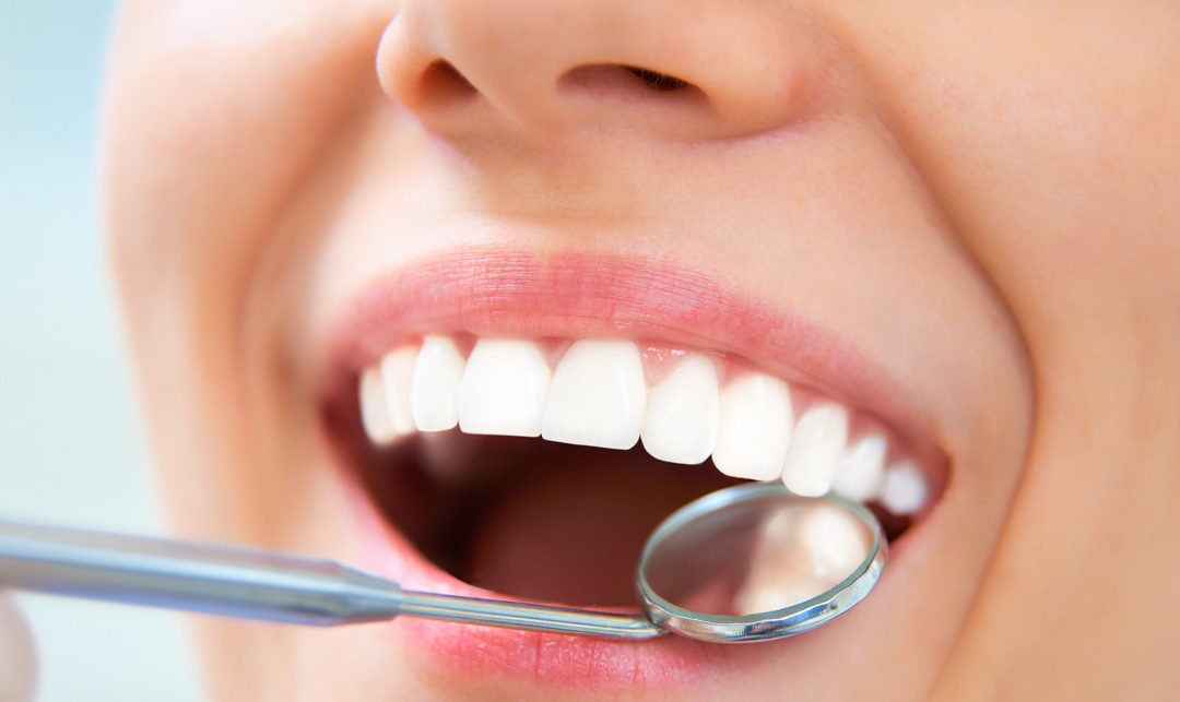 What Are Dental Preventive Services and Why Are They Important?