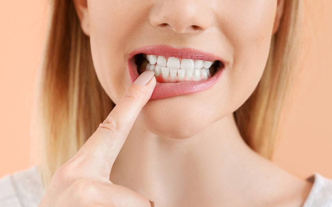 Are You at Risk for Periodontal Disease?